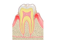 top歯周病02